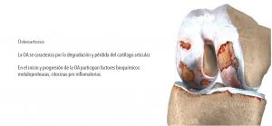 osteoartrosis